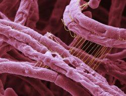 Apa Itu Penyakit Antraks? Ini Penyebab dan Cara Mengatasinya